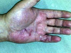 Dupuytren po léčbě.jpg, 30kB