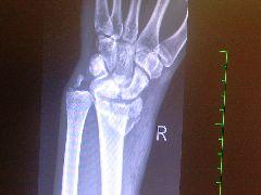 Dolní konec vřetení kosti po úrazu.jpg, 20kB