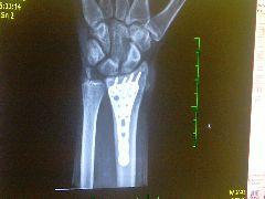 Dolní konec vřetení kosti po operaci.jpg, 20kB